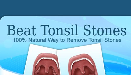 In Tonsils, a Smelly Embarassing Problem Under the Radar